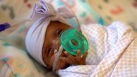 کوچکترین نوزاد دختر دنیا متولد شد