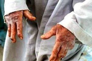 جذام هنوز در ایران هست/رجوع 18 مورد فرد مبتلا به جذام در سال 97 به مراکز درمان