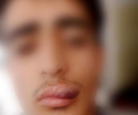 ضرب و شتم دانش آموز زنجانی توسط معلم ورزش + عکس