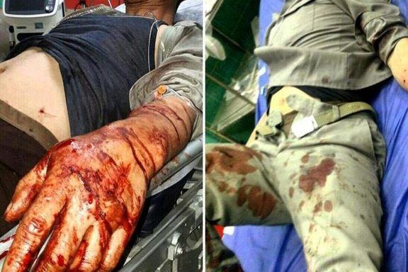 محیط بان خراسانی مورد اصابت گلوله شکارچی غیر مجاز قرار گرفت