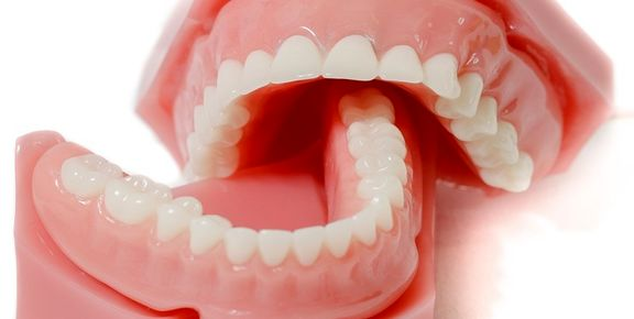 قیمت واقعی دندان مصنوعی چقدر است؟
