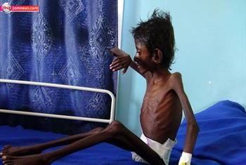 تصاویری دردناک از کودکان یمنی