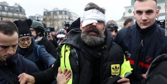 24 معترض فرانسوی یکی از چشمان خود را از دست دادهاند + عکس