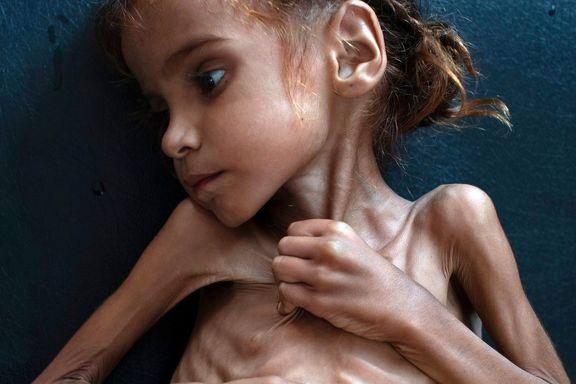 ظاهر مظلوم و استخوانی دختر هفت ساله یمنی که دنیا را متاثر کرد + عکس